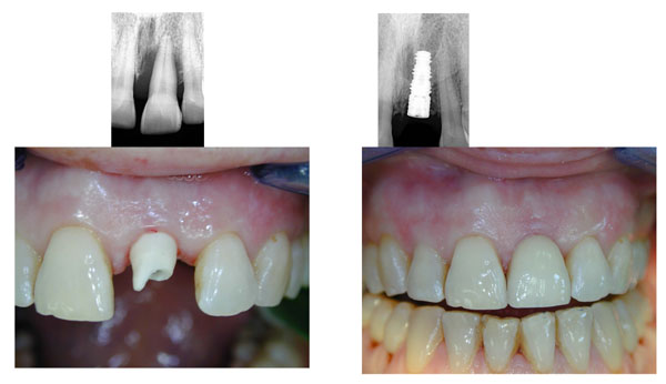 dent implants pose piliers